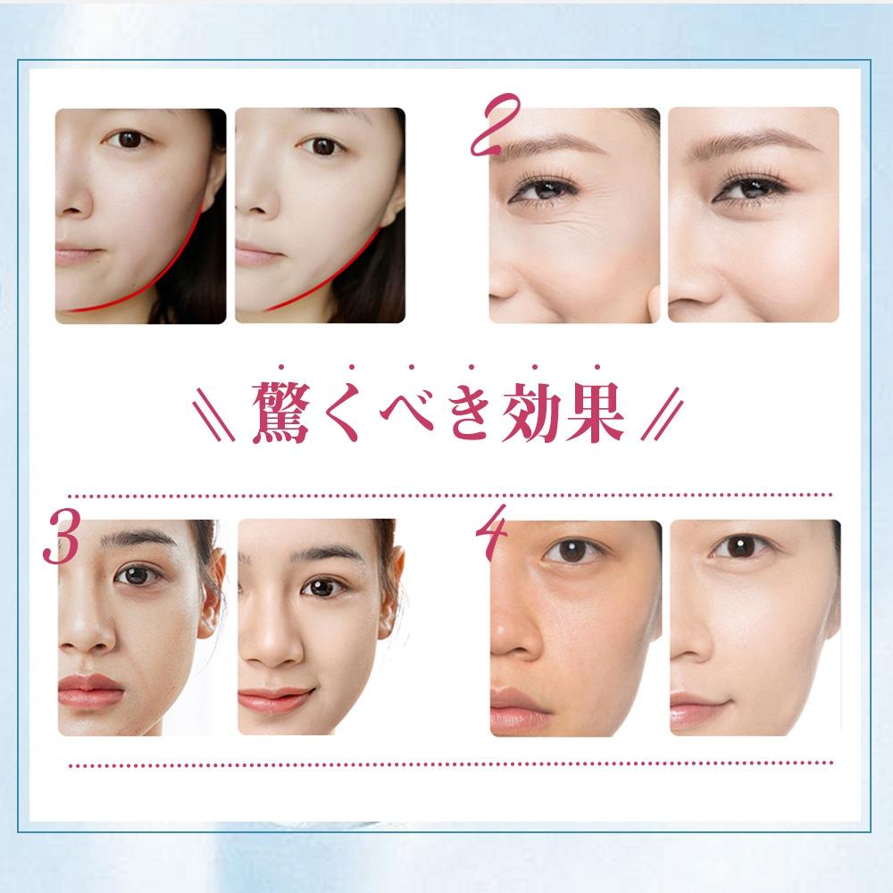AICORP(アイコーポ) 美顔ローラーの商品画像9