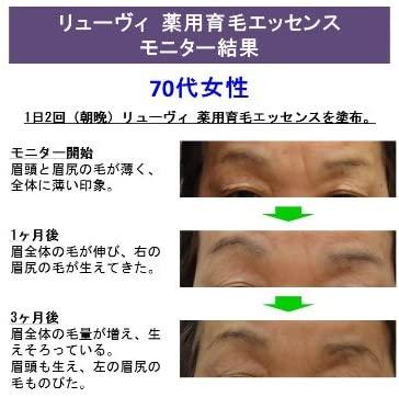 LyuVie(リューヴィ)薬用育毛エッセンスの商品画像9