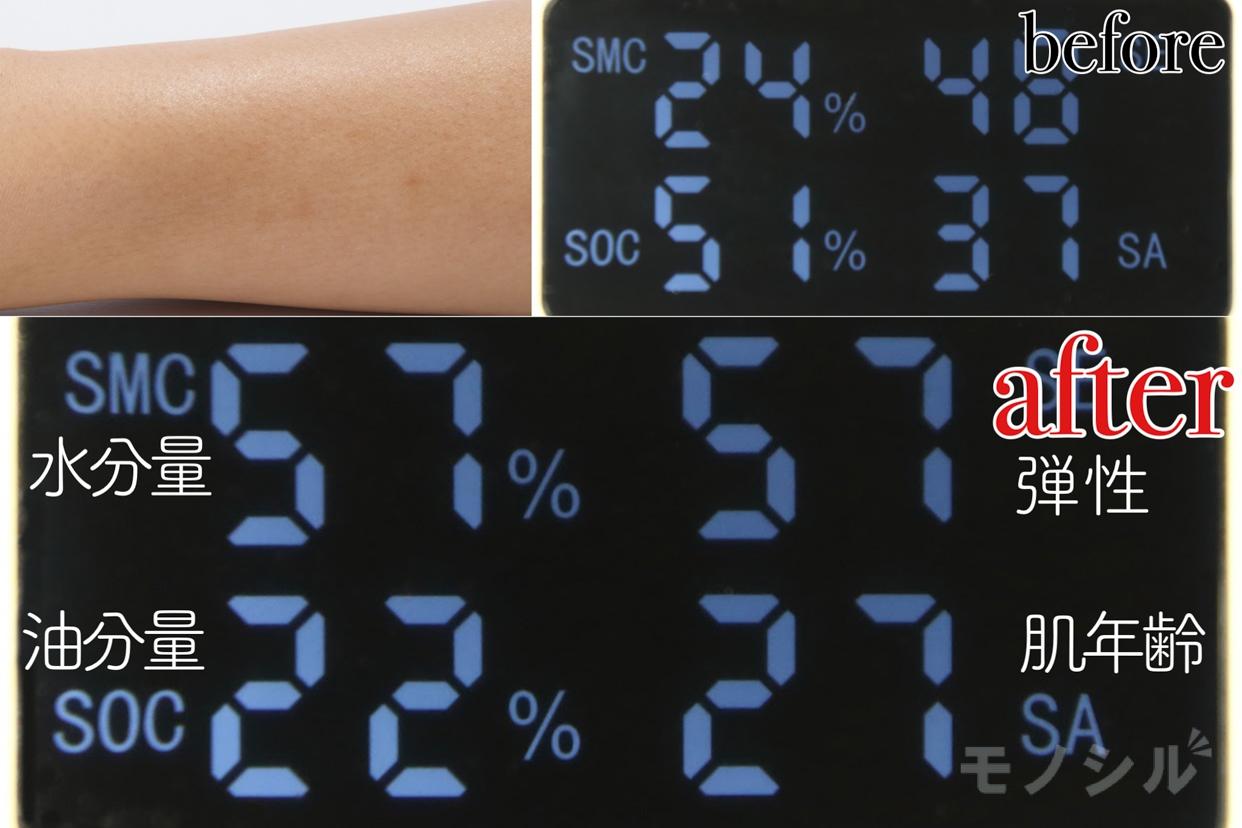 b.glen(ビーグレン) QuSomeローションの商品の保湿効果の高さ検証