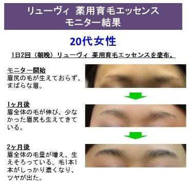 LyuVie(リューヴィ)薬用育毛エッセンスの商品画像7