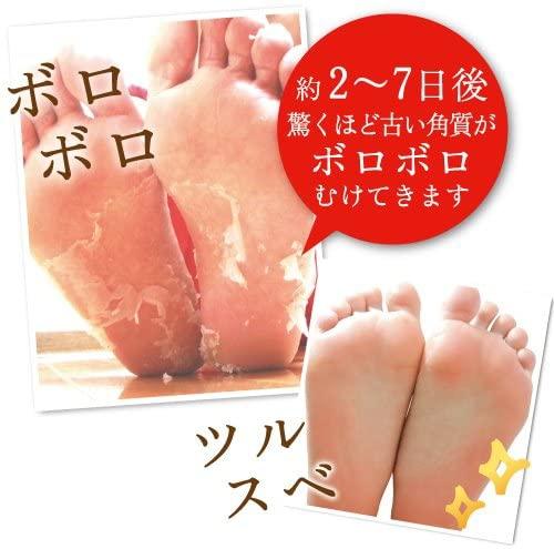 Baby Foot(ベビーフット) イージーパック SPT60分タイプの商品画像4