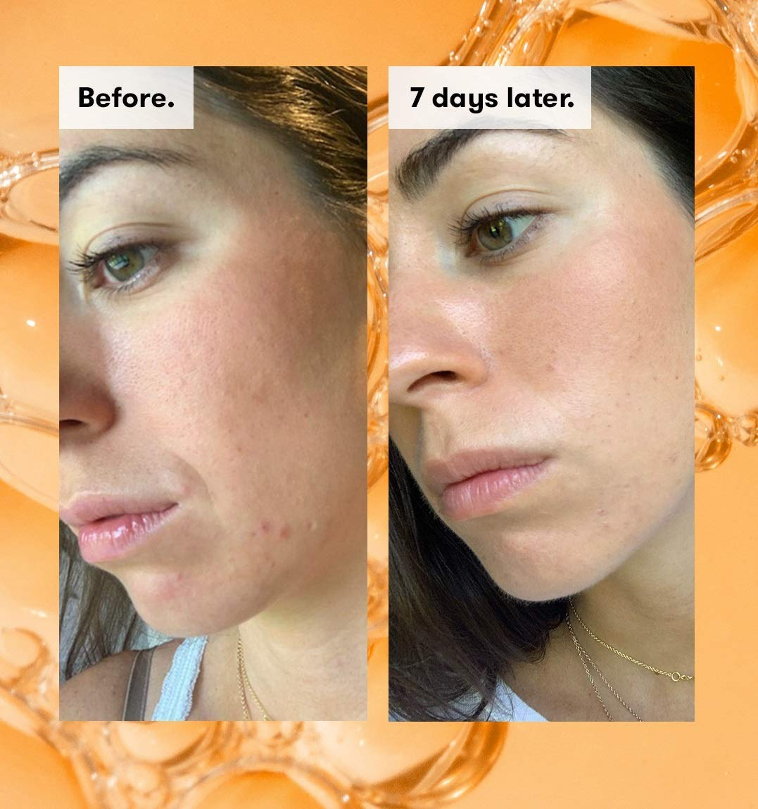 REN Clean Skincare(レンクリーンスキンケア) レディー ステディー グロー デイリー AHA トニックの商品画像3