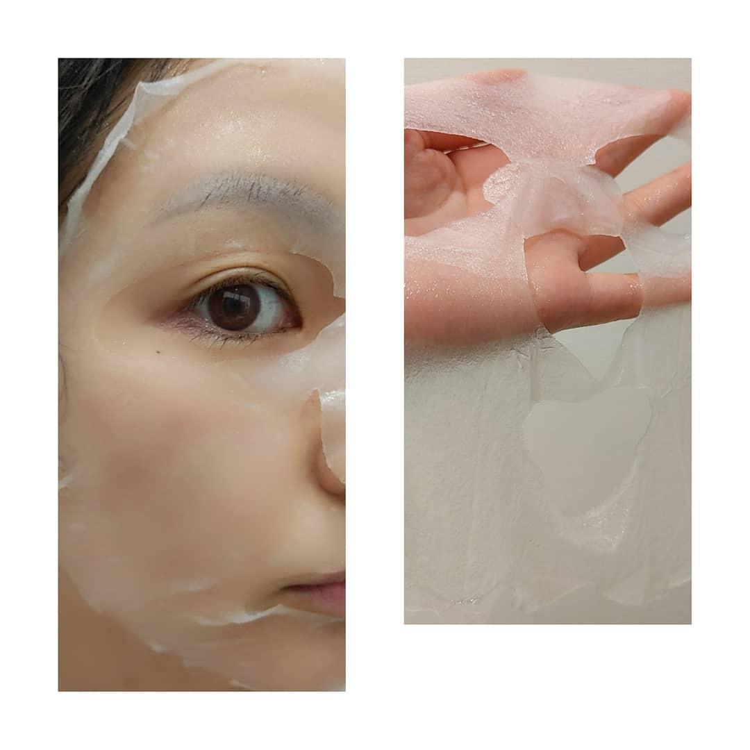 MEDIHEAL(メディヒール) ティーツリーケア ソルーション エッセンシャルマスクEXを使ったみり俵@冬ビビ春ビビさんのクチコミ画像2