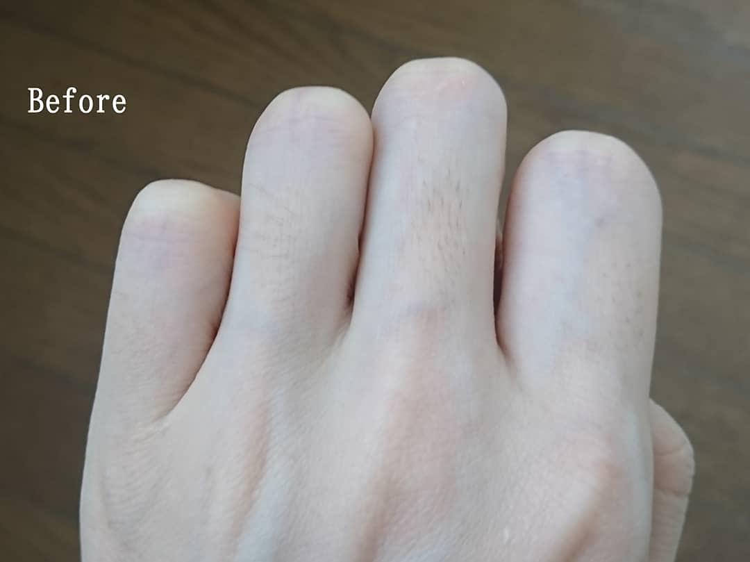 NONON(ノンノン)オールインワン除毛クリームを使ったYuKaRi♡さんのクチコミ画像6