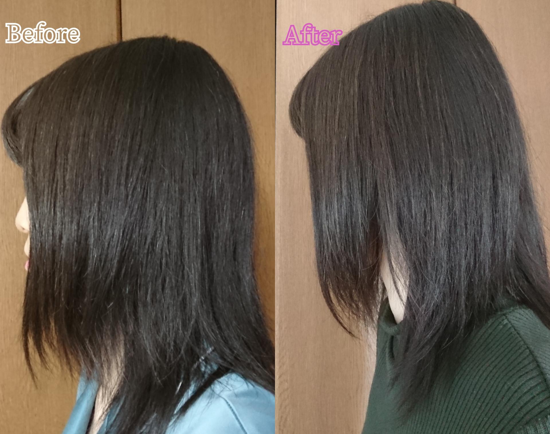 MY NATURE(マイナチュレ)無添加育毛剤を使ったYuKaRi♡さんのクチコミ画像6