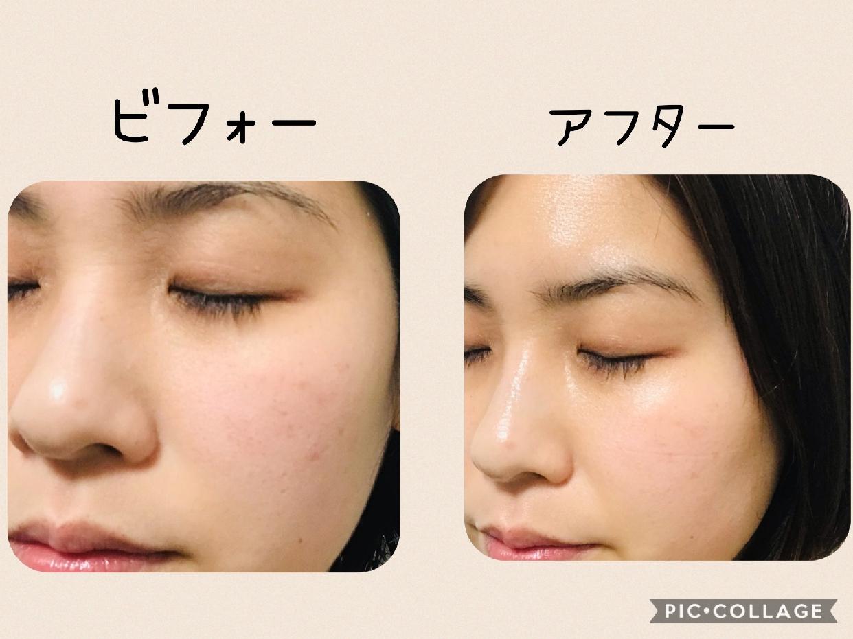 MIKIMOTO COSMETICS(ミキモトコスメティックス) エッセンスマスクLXを使ったAYAさんのクチコミ画像3