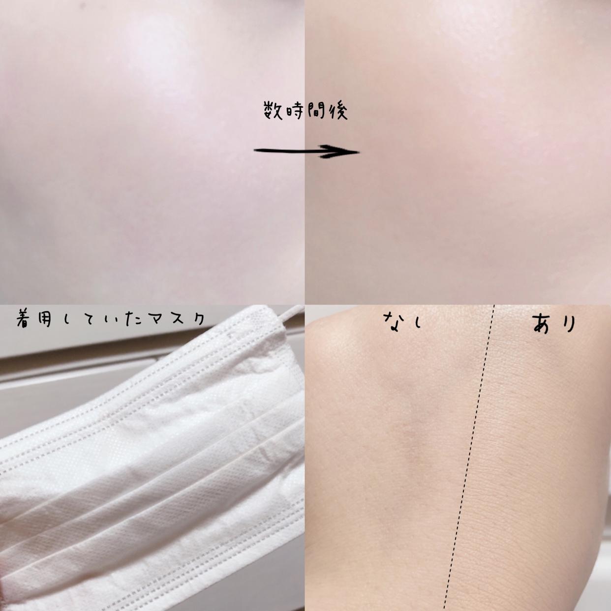 APLIN(アプリン)ピンクティーツリーカバークッションを使った桜羽さんのクチコミ画像