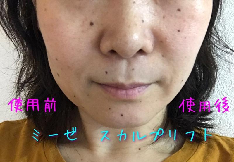 myse(ミーゼ)スカルプリフト MS-80Wを使ったkirakiranorikoさんのクチコミ画像5