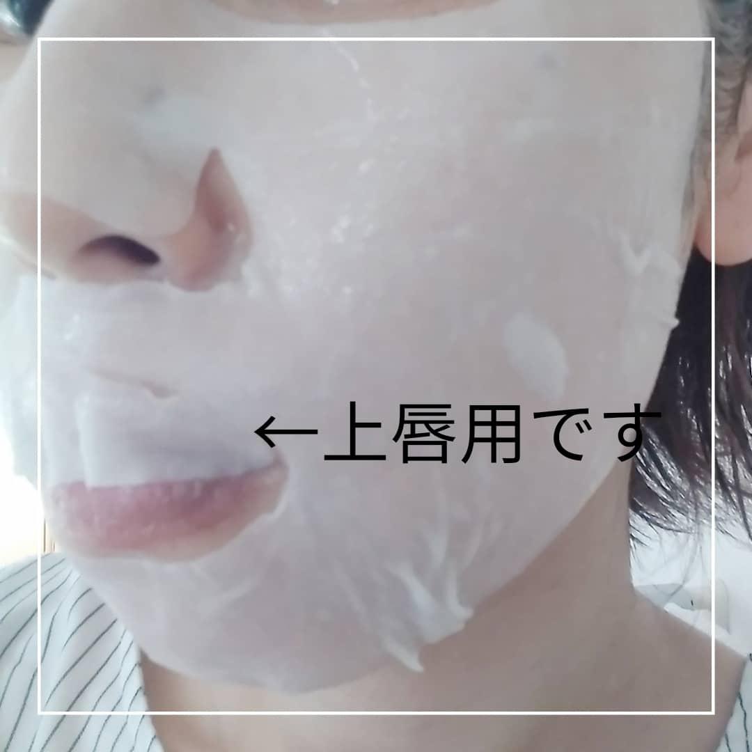 MEDIHEAL(メディヒール) D:NAプロアチンマスクを使ったmana.mana.78さんのクチコミ画像3