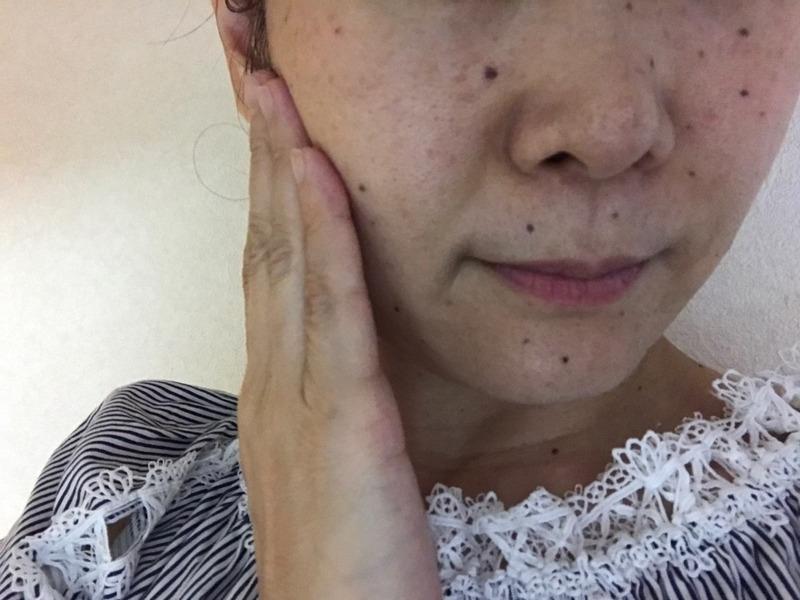 PLAMINE(プラミネ)ハイブリッドオイルを使ったkirakiranorikoさんのクチコミ画像8