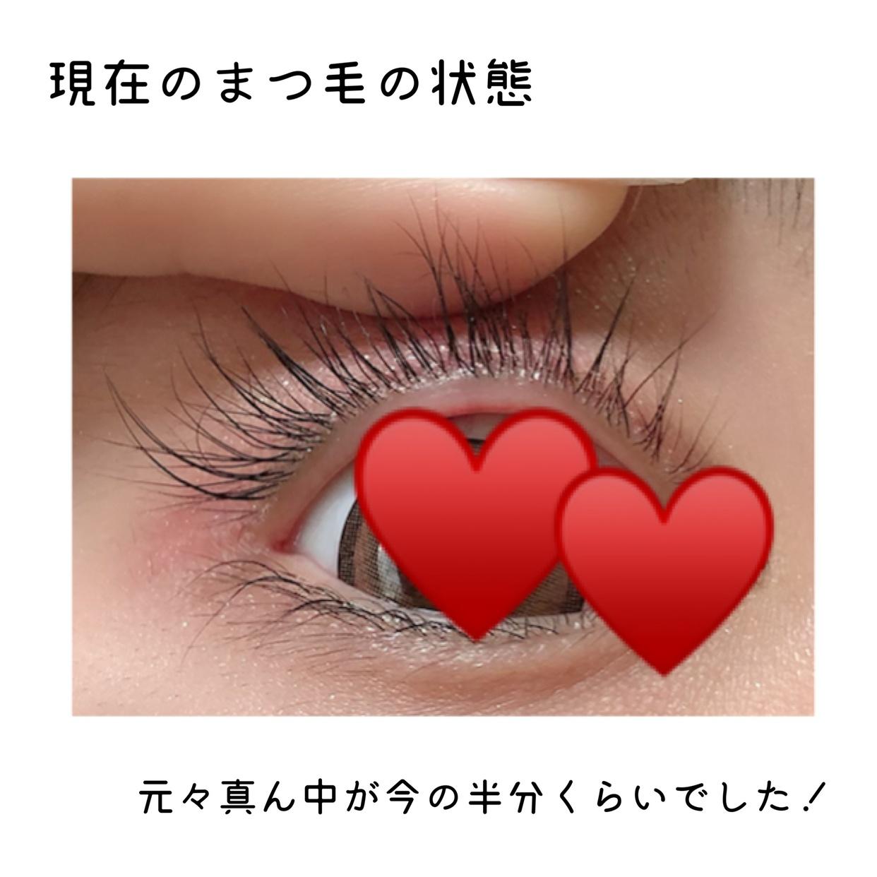 水橋保寿堂製薬 EMAKED(エマーキット)の良い点・メリットに関するぴょんさんの口コミ画像3