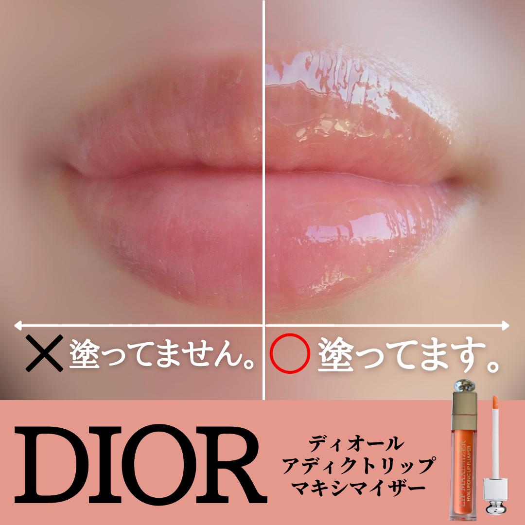 Dior(ディオール)アディクト リップ マキシマイザーを使ったみゆさんのクチコミ画像1