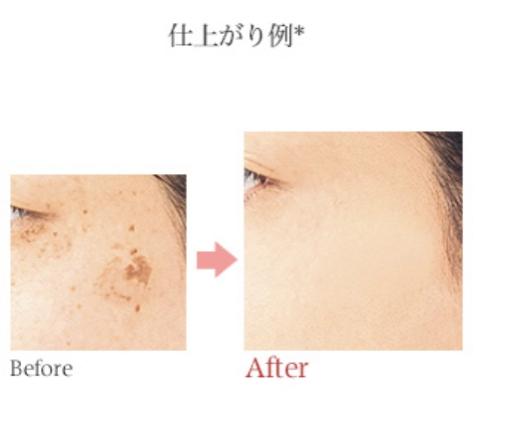 COVERMARK(カバーマーク)フローレス フィットを使った 杏花さんのクチコミ画像