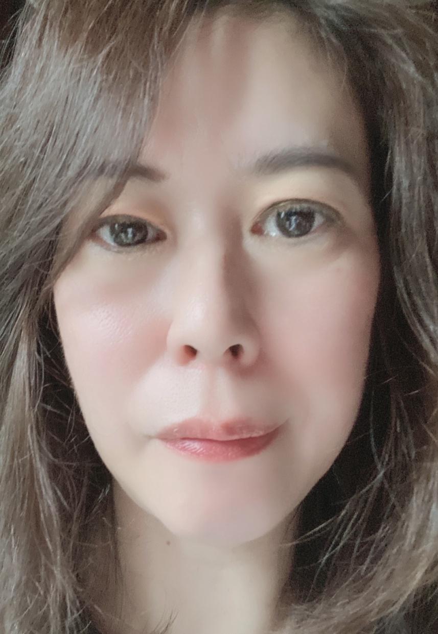 SMASLIFT(スマスリフト) ウルセラタンリフトを使ったfumiさんのクチコミ画像2