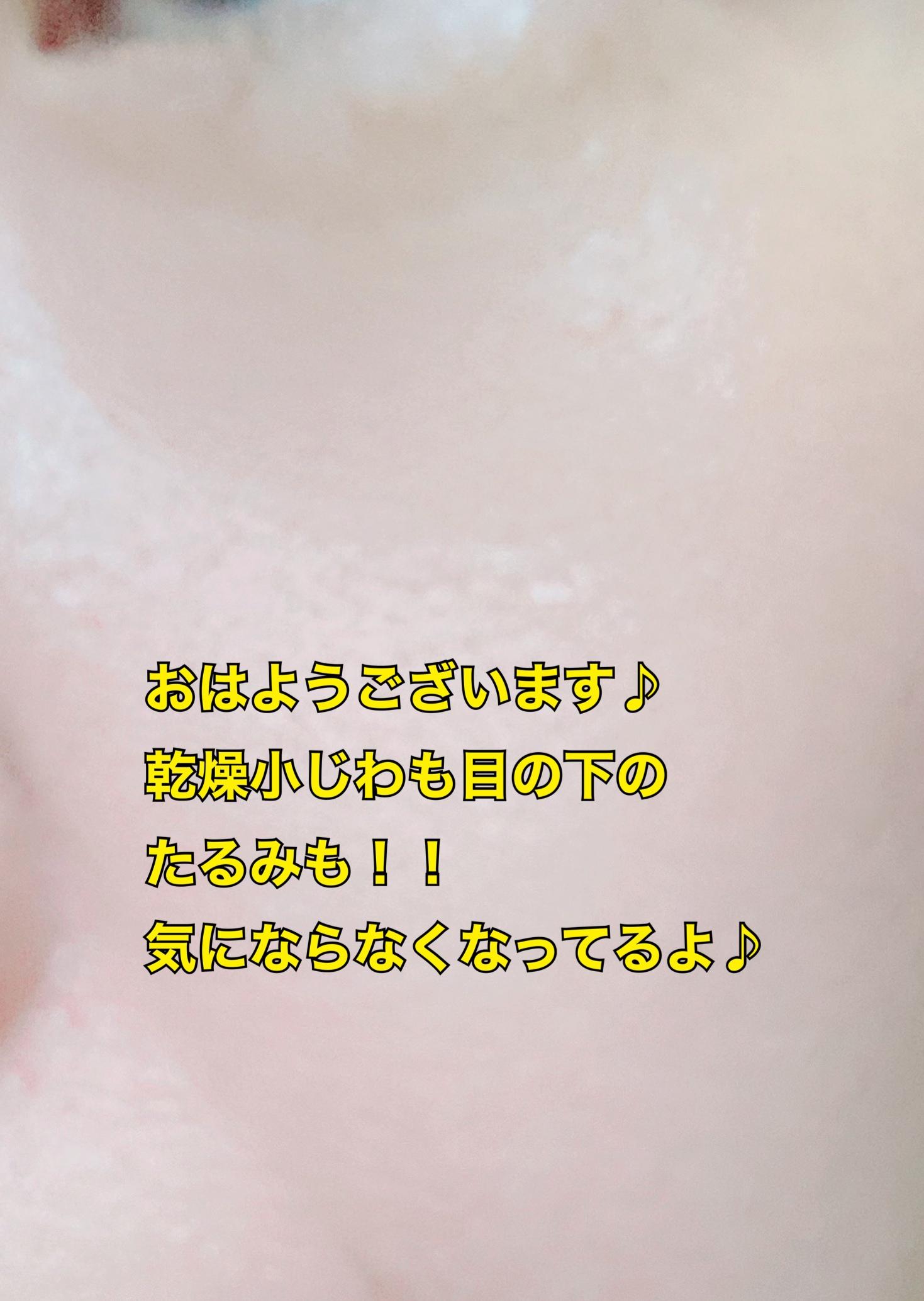∴M4(エムフォー) ダイレクトセンサーパッチの良い点・メリットに関するfumiさんの口コミ画像3