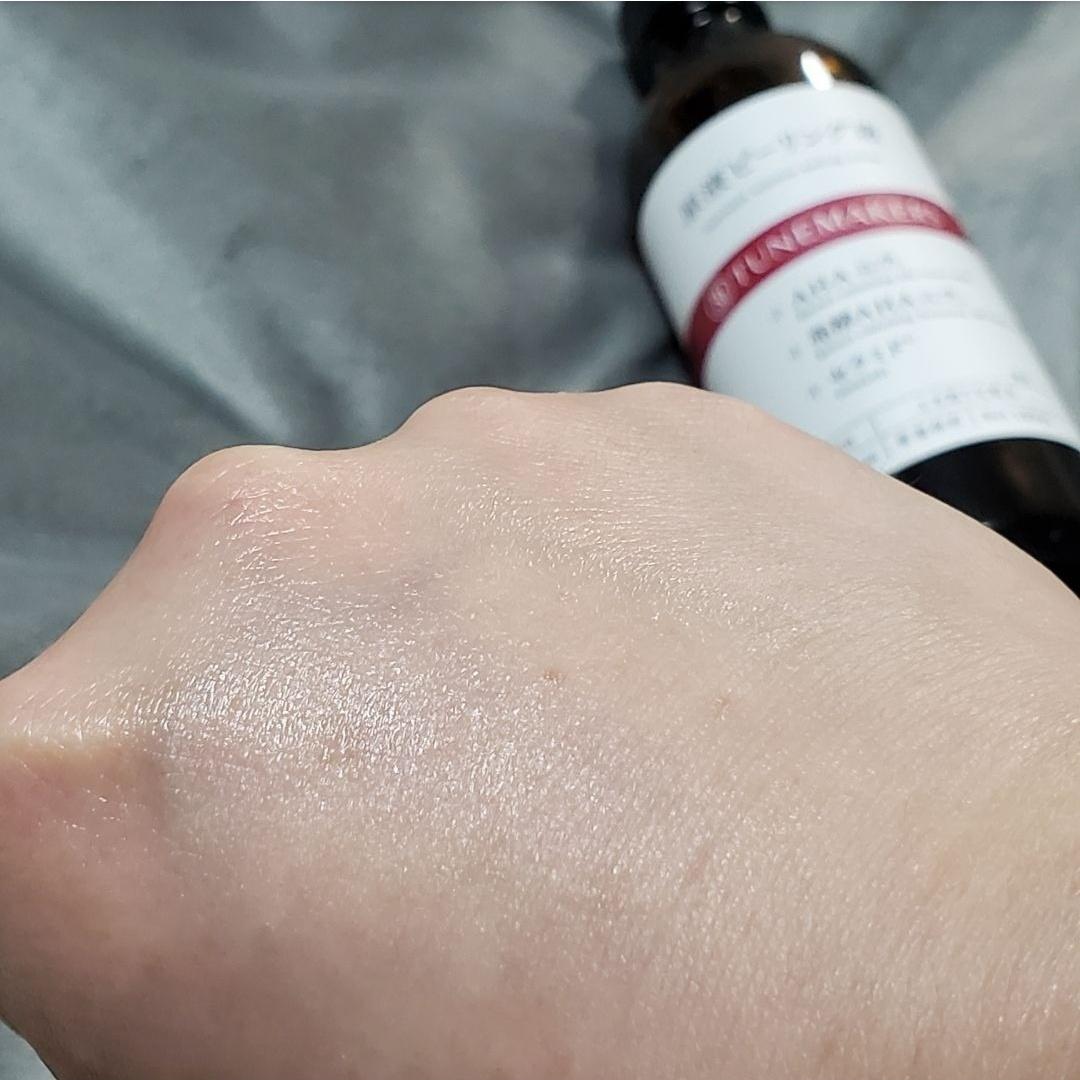 TUNEMAKERS(チューンメーカーズ)原液ピーリング液を使ったKorさんのクチコミ画像4