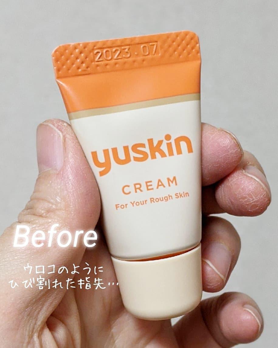 yuskin(ユースキン) ユースキンAを使ったr_cosme_roomさんのクチコミ画像2