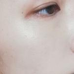 美容皮膚科・スキンケアブロガー |              しゃとり世代